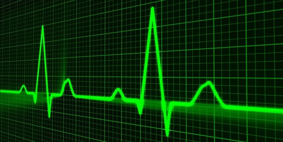 Monitoring Puls Grafik